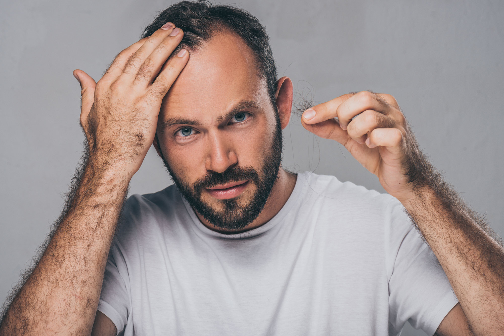 Man looking at hairline holding fallen hair